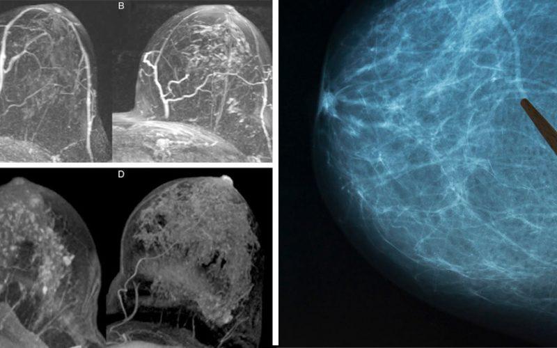 Actualizaciones del reporte de datos BI-RADS para mamografía